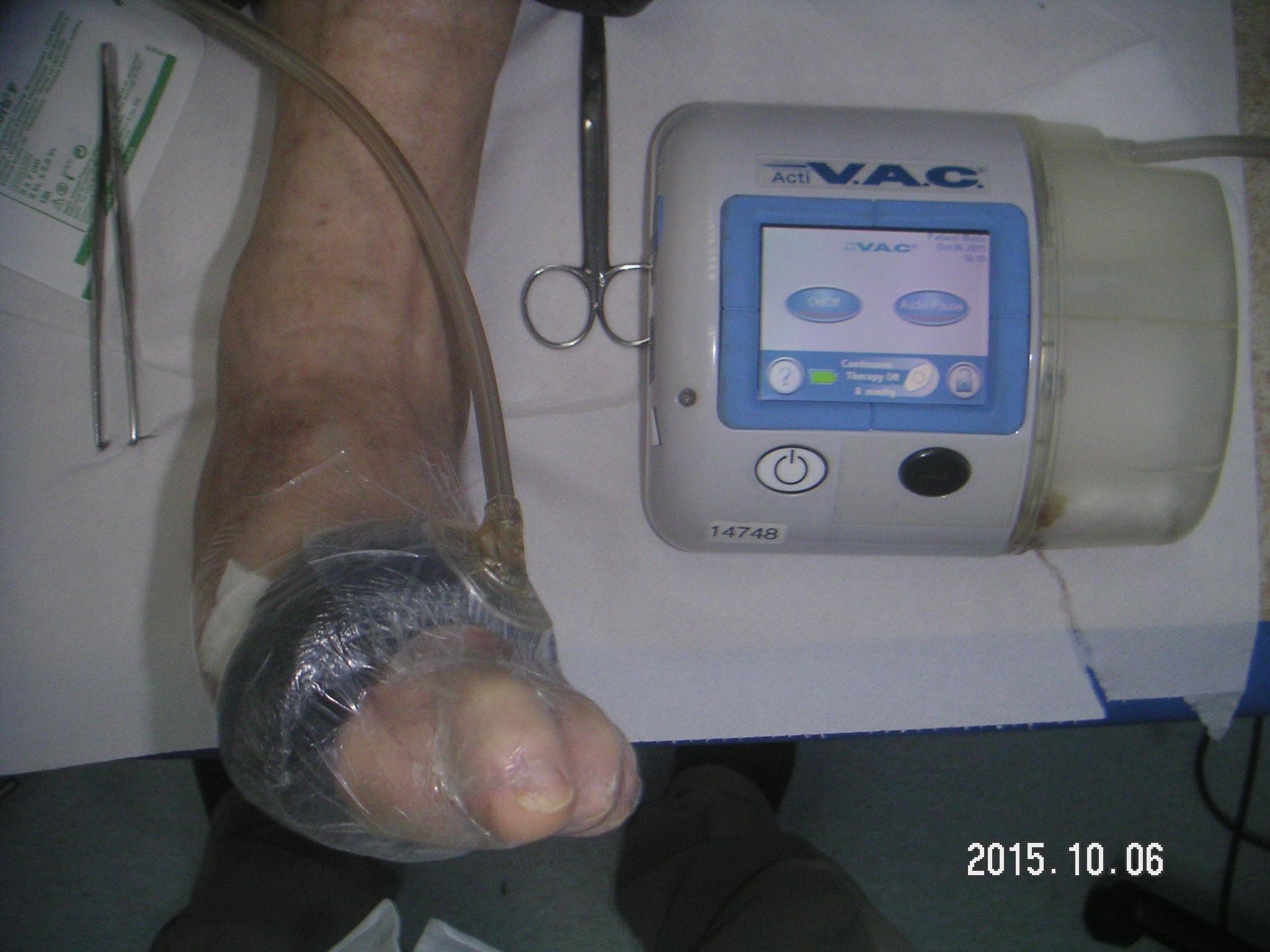Podciśnieniowe leczenie ran – VAC